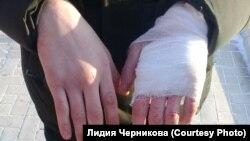 Руки избитого при задержании ГИБДД Юрия Ямашкина из Куйтуна