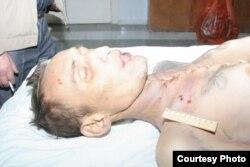 Тело покойного заключенного тюрьмы в Балхаше Сергея Григорьева с ранами. Фото предоставлено матерью погибшего Ларисой Григорьевой. Жезказган, 19 октября 2011 года.