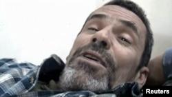 Британиялик журналист Пол Конрой яраланган аҳволда