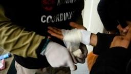 Migrantima u Velikoj Kladuši previjaju rane