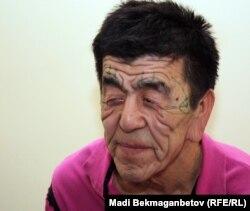 Нуржан Уркешбаев перед пластической операцией. Алматы, 8 декабря 2011 года.