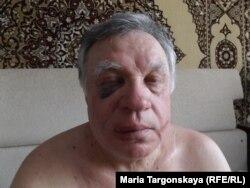 Тесть Антона Косякова Николай Миронов после избиения