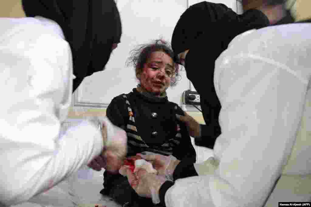 A Syrian girl who was injured in a bombardment cries as she receives treatment at a makeshift hospital in the besieged rebel-held town of Douma on the outskirts of the capital, Damascus. The deadliest of Syrian regime and Russian air strikes on the Eastern Ghouta region hit the Hammuriyeh district on January 6, leaving 12 civilians dead, including two children, the Syrian Observatory for Human Rights said. (AFP/ Hamza Al-Ajweh)