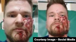 Норвежский журналист Оештейн Виндстад после совершенного на группу журналистов нападения в Ингушетии.