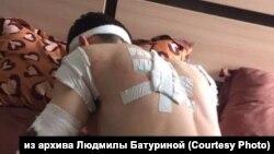"""Следы от """"расстрела"""" на одном из иркутян, заявившем о пытках в СИЗО"""