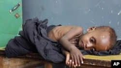 A malnourished child rests at a hospital in Mogadishu.