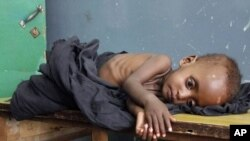 Malnutrition rates in Somalia have reached extraordinarily high levels of 50 percent for children under five.