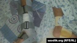 Zominlik Akmal Hasanboev militsiya xodimlari majruh bo'lib qolganini aytadi