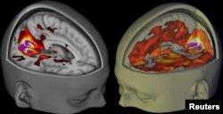 Мозг удзельніка экспэрымэнту, які прыняў ЛСД (справа) і пляцэба (зьлева) на здымках, зробленых з дапамогай магнітна-рэзананснай тамаграфіі дасьледнікамі з Імпэрскага каледжу Лёндану.