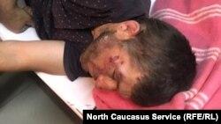 Муса Мусаев был избит 3 сентября
