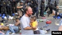 Поранений внаслідок сутичок з угорською поліцією біженець на угорсько-сербському кордоні. 16 вересня 2015 року