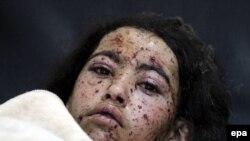 سازمان ملل متحد و گروههای حقوق تخمین میکنند که با آغاز حملات به هدف سرکوب شورشیان حوثی و متحدین آن، از ماه مارچ سال ۲۰۱۵ به این سو، حد اقل ۱۰ هزار نفر کشته شدهاند.