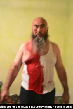 Dilyar Jumabaev after his beating, allegedly by security forces