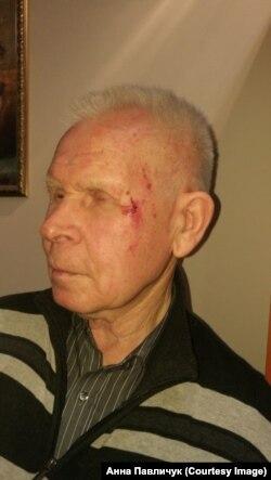Валентин Кузнецов через несколько часов после избиения