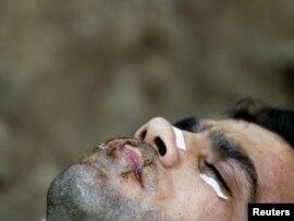 حمید صادقی، پناهجوی  ایرانی که پیش از این در آتن یونان لبهای خود را دوختهبود. ۶ اوت ۲۰۱۰