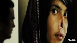 Афганская девушка Биби Аиша, искалеченная собственным мужем за попытку бежать от него