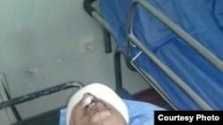 В Мосуле тяжело ранен внештатный корреспондент РСЕ/РC