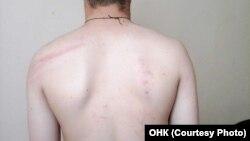 Заключенный, избитый в красноярской колонии 31