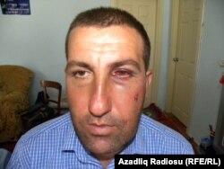 İyulun 27-də aksiyada iştirak etdiyinə görə döyüldüyünü deyən Yaşar Bağırsoy