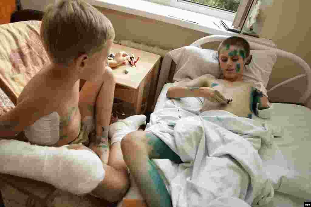 Дмитро (7 років) і Андрій (12 років) у травматологічній лікарні Донецька. Хлопці були поранені 7 серпня 2015 року під час вибуху гранати, яку вони знайшли на полігоні бойовиків угруповання «ДНР». Фото від 15 серпня 2015 року.