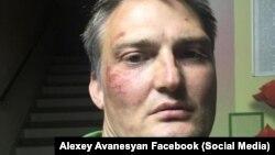 Михаил Беньяш после инцидента в полицейском автомобиле