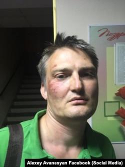 Михаил Беньяш после избиения полицейскими