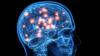 Нават лёгкая форма захворваньня каранавірусам можа спараджаць сур'ёзныя парушэньні мозгу