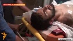 Վերակենդանացման բաժանմունքում գտնվող Պավել Մանուկյանին ու որդուն մեղադրանք է առաջադրվել