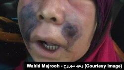 افغانستان کې د تور 'فنګس' ناروغۍ ۱۵ پېښې ثبت شوي