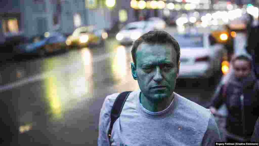 Navalnîi în drum spre spital, după ce a fost stropit cu verde de briliant de atacatori necunoscuți în aprilie 2017. După acel incident, Navalnîi a suferit de arsuri grave la ochi.