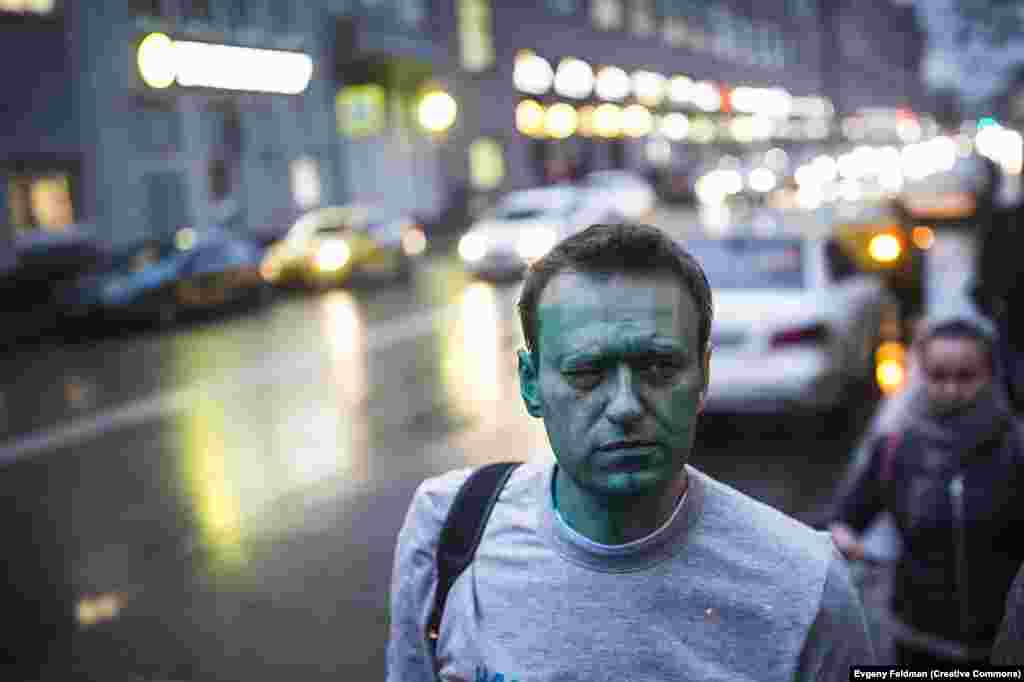 Navalny on his way to the hospital after being splashed with green dye by unknown assailants in Moscow in April 2017. He suffered burns to his eye in the attack.