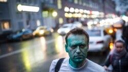 Kreml tankytçysy Nawalnyý 'huşsuz, agyr halda' ýatyr. Egindeşleri onuň zäherlenendigini çaklaýar