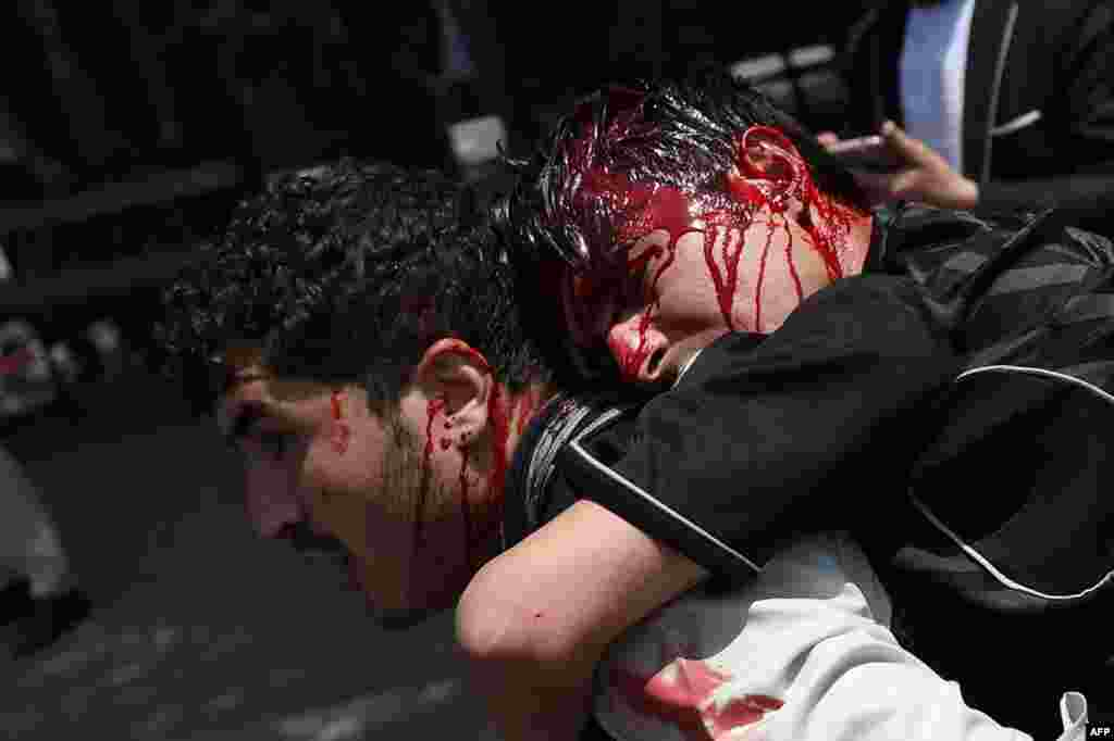 An Afghan protester carries his injured colleague during clashes with Afghan riot police at a demonstration against Taliban militants and the kidnapping of civilians at Shar-e Naw Park in Kabul. Hundreds of Afghans staged a protest in Kabul over recent kidnappings of civilians in northeastern Afghanistan by Taliban insurgents. (AFP/Wakil Kohsar)