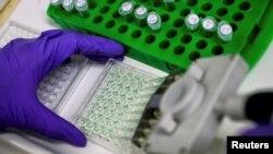 Велика Британія – Вчені готують білкові зразки для аналізу в лабораторії. Ілюстративне фото