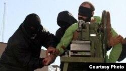 ირანელი მსჯავრდებული, რომელსაც თითების ამპუტაცია აქვს მისჯილი.