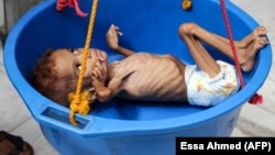 A Yemeni child suffering from malnutrition is weighed at a hospital in the northern district of Abs in the northwestern Hajjah Province last year.