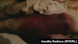 Yaxınları Nurani Ibrahimovun bədənində işgəncə izləri olduğunu deyərək bu fotonu yayıblar.
