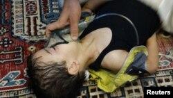 یکی از تصاویر منتشرشده از حمله شیمیایی به غوطه که البته زمان آن به پیش از بازه زمانی تحقیقات اخیر هیئت بینالمللی باز میگردد