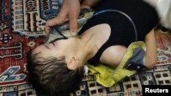 Газдан уланған сириялық бала. Дамаск маңы, 21 тамыз 2013 жыл.