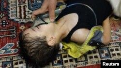 Сирия, газ чабуулуна ууланды делген бала. 21-август August 21, 2013-жыл
