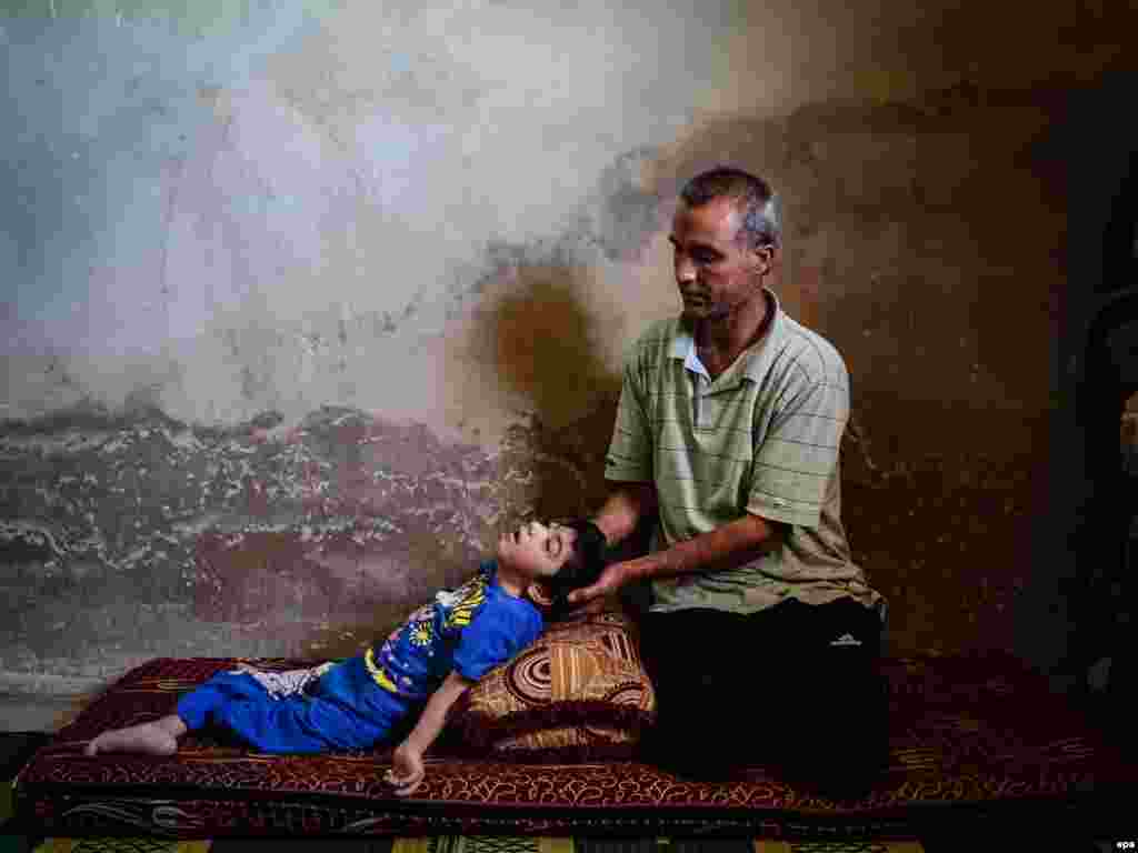 Ahmed sits next to his daughter Reem, who is suffering disabilities due to injuries sustained in government shelling, at their home in Daraa, Syria. (epa/Mahmud al-Hamza)
