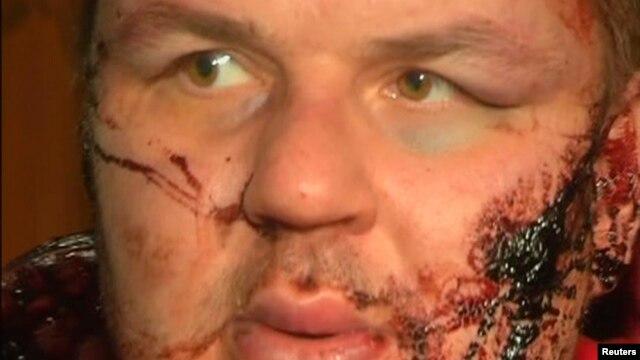 Дмитрий Булатов после похищения и пыток