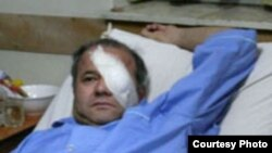 منصور اسانلو به دليل عمل سنگين جراحی چشم و فشارهای عصبی، در روزهای اخير در بخش ويژه مراقبت های قلبی، سی سی يو، بيمارستان لبافی نژاد تهران بستری شده بود.