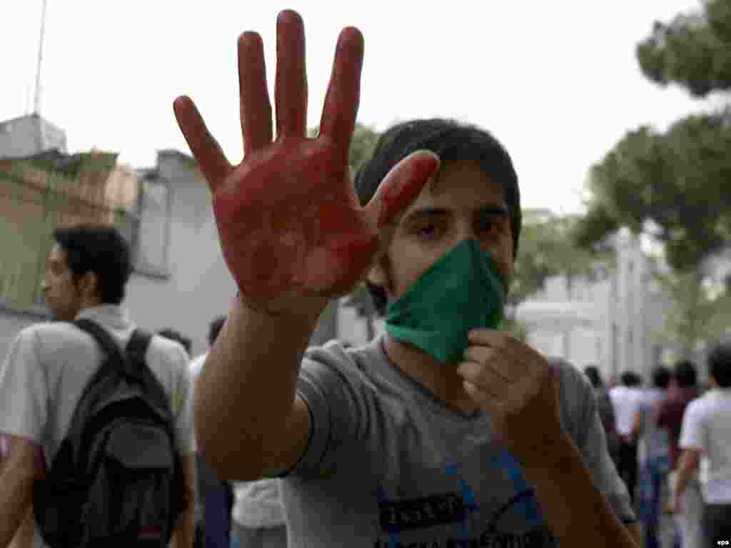 A protester shows a bloodied hand after the clashes.