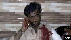 Один из пострадавших при взрыве в Лал Шахбаз Каландар (16 февраля 2017 г.)