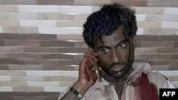 Поранений під час нападу на суфійську святиню, Пакистан, 16 лютого 2017 року