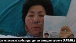 Кырсыкка кабылган кыргызстандык мигранттын абалы.