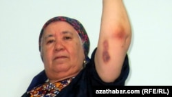 RFE/RL Turkmen Service correspondent Soltan Achilova showings bruises suffered during a late-October attack in Ashgabat.