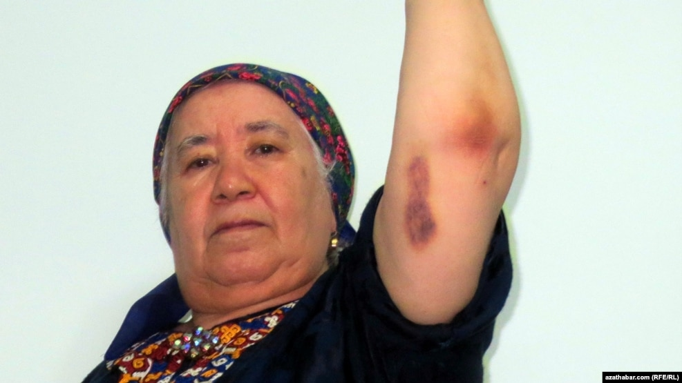 RFE/RL Turkmen Service correspondent Soltan Achilova displays some of the bruises she suffered during an attack in late October in Ashgabat.