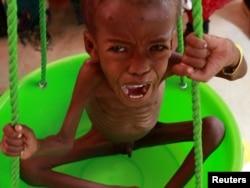 Ребенок из Сомали, страдающий от недоедания, в гуманитарном центре ООН в Эфиопии, март 2014 года